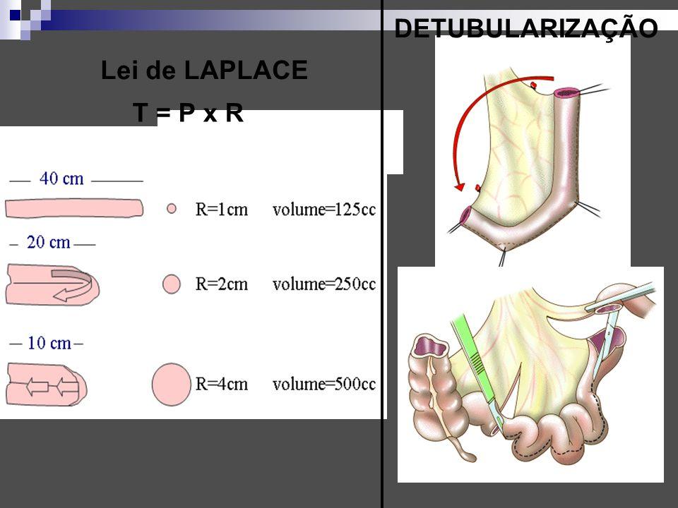 Lei de LAPLACE T = P x R DETUBULARIZAÇÃO
