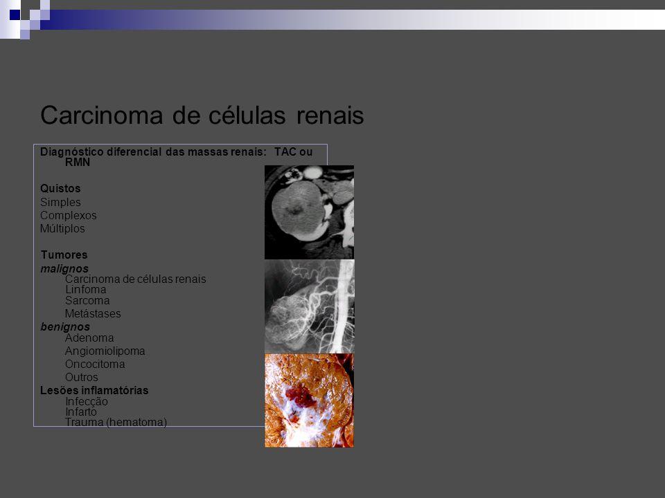 Grupos de prognóstico em tumores metastáticos: Grupo com prognóstico intermédio: Não seminoma em 28 % dos casos: Sem progressão aos 5 anos (PFS): 75% Sobrevivência aos 5 anos: 80 %, quando reune todos os seguintes critérios: Primário no testiculo ou retroperitoneu Sem metástases viscerais não pulmonares APP >1.000 ng/ml e < 10.000 ng/ml ou hCG >5000 IU/l e < 50.000 IU/l ou LDL > 1,5 e < 10 x UNL Seminoma em 10% dos casos.