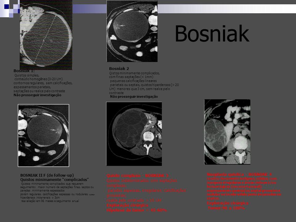 Bosniak 1: Quistos simples, conteúdo homogêneo (0-20 UH) contornos regulares, sem calcificações, espessamentos parietais, septações ou realce pelo con