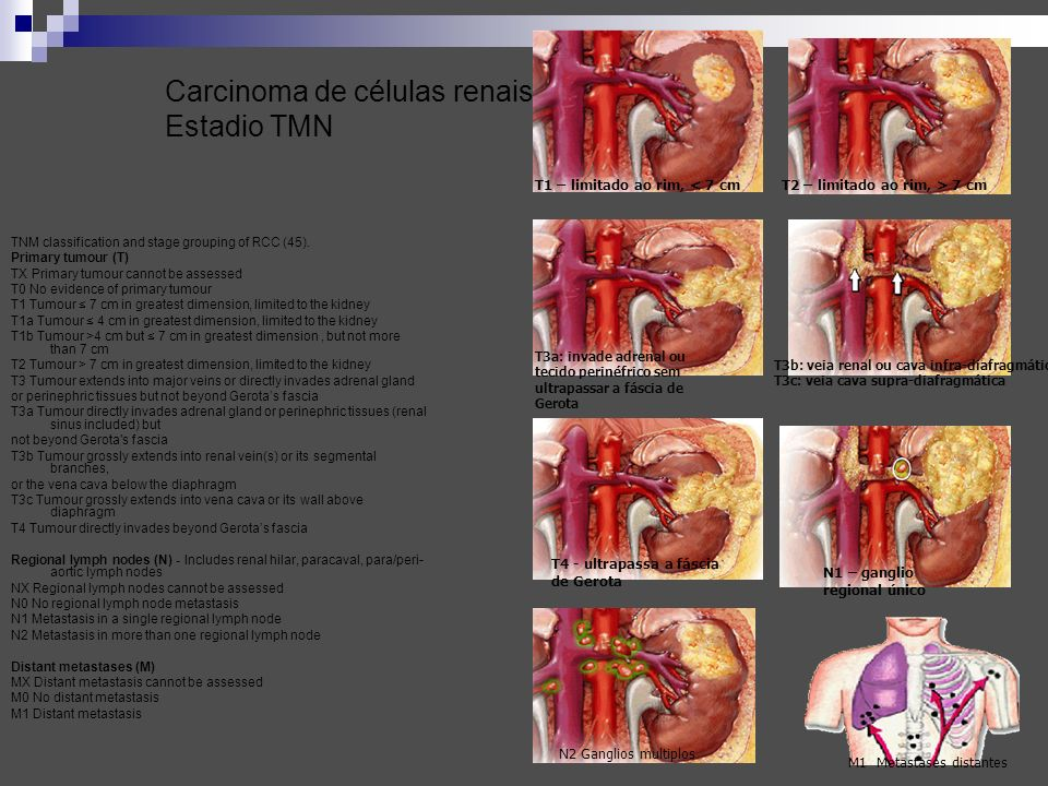 Carcinoma de células renais Estadio TMN TNM classification and stage grouping of RCC (45). Primary tumour (T) TX Primary tumour cannot be assessed T0