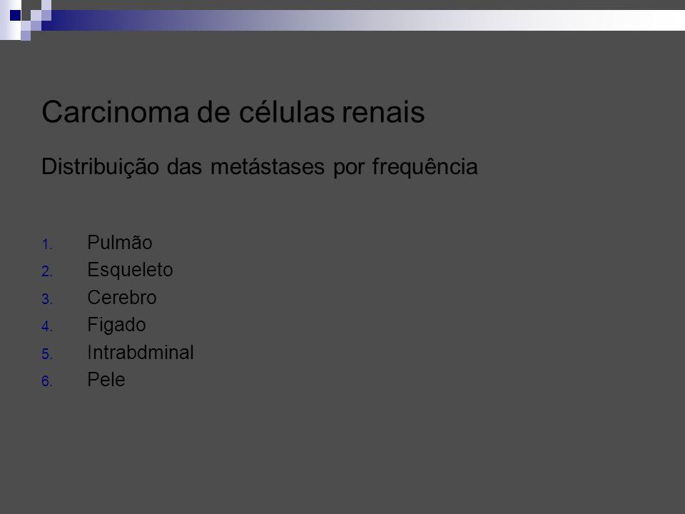 Carcinoma de células renais Distribuição das metástases por frequência 1. Pulmão 2. Esqueleto 3. Cerebro 4. Figado 5. Intrabdminal 6. Pele