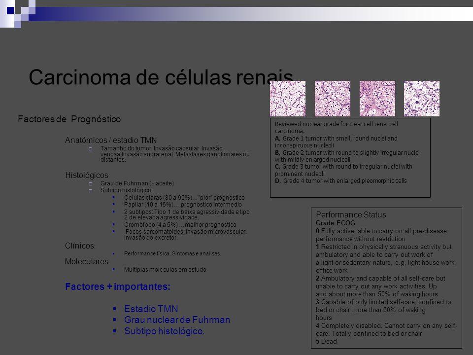 Carcinoma de células renais Factores de Prognóstico Anatómicos / estadio TMN Tamanho do tumor. Invasão capsular. Invasão venosa.Invasão suprarenal. Me