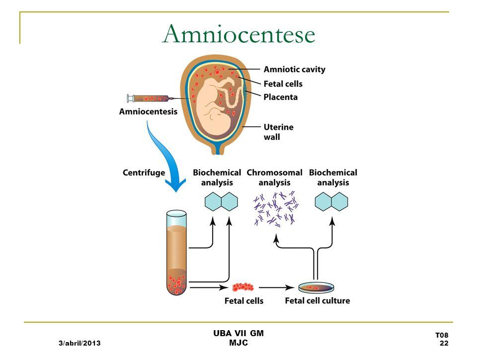 Amniocentese 3/abril/2013 T08 22 UBA VII GM MJC
