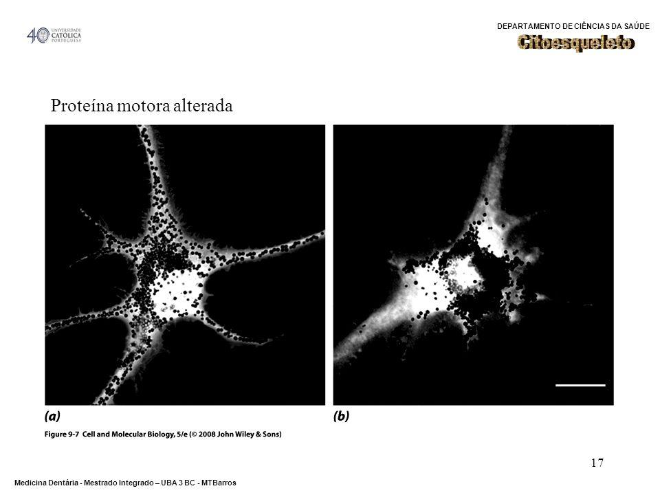 DEPARTAMENTO DE CIÊNCIAS DA SAÚDE Medicina Dentária - Mestrado Integrado – UBA 3 BC - MTBarros 17 Proteína motora alterada