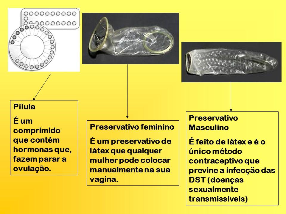 Pílula É um comprimido que contém hormonas que, fazem parar a ovulação. Preservativo feminino É um preservativo de látex que qualquer mulher pode colo