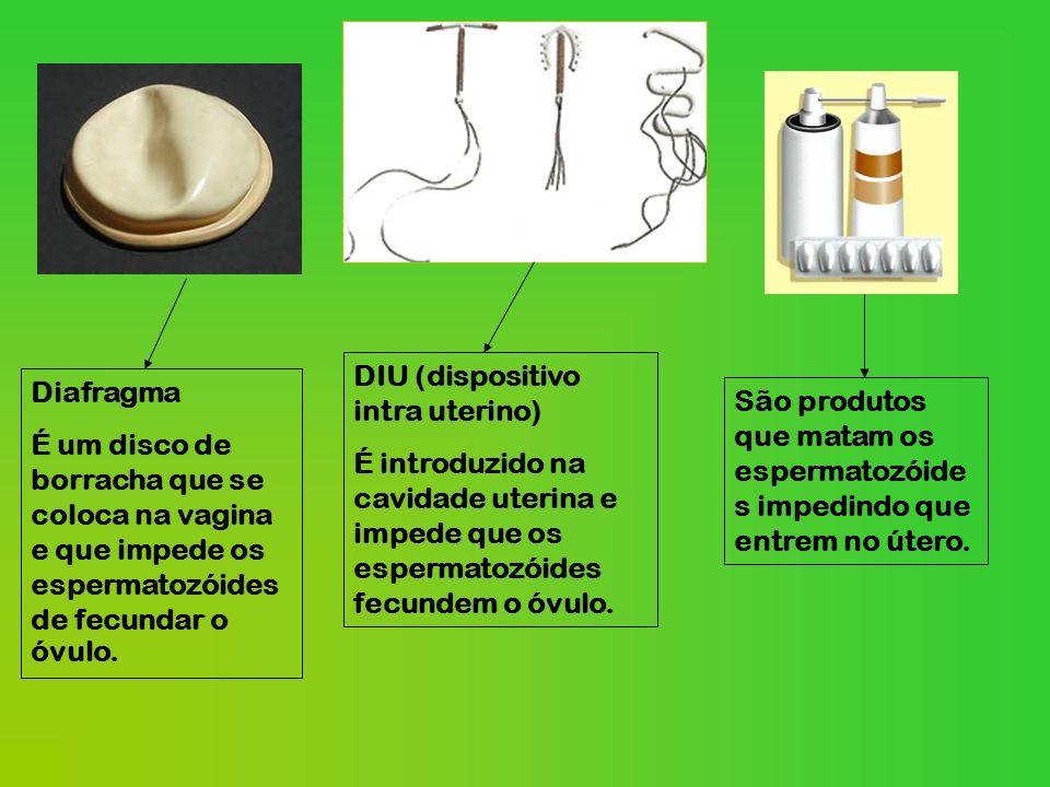 Laqueação das trompas Consiste no corte das trompas de Falópio que levam o ovócito do ovário para o útero.