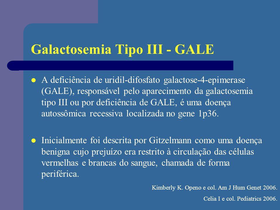 Galactosemia Tipo III - GALE A deficiência de uridil-difosfato galactose-4-epimerase (GALE), responsável pelo aparecimento da galactosemia tipo III ou