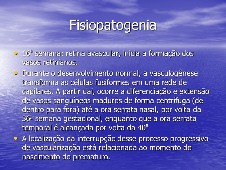 Fisiopatogenia 16 ª semana: retina avascular, inicia a formação dos vasos retinianos. 16 ª semana: retina avascular, inicia a formação dos vasos retin