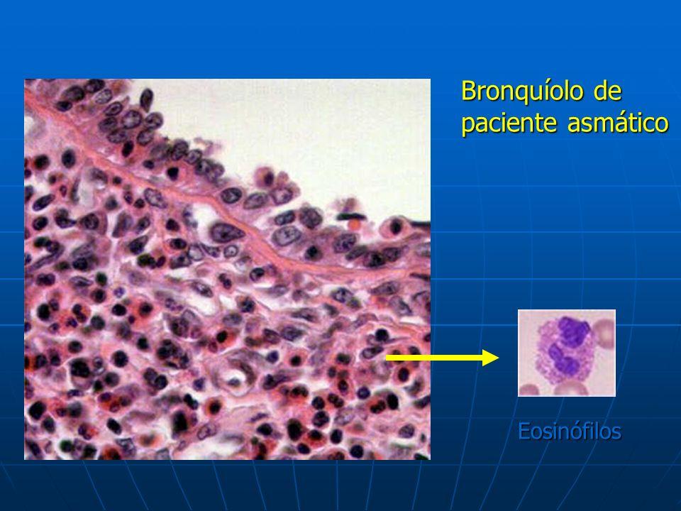 Bronquíolo de paciente asmático Eosinófilos