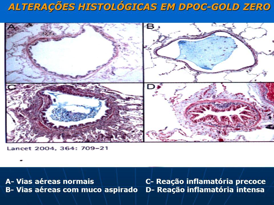 ALTERAÇÕES HISTOLÓGICAS EM DPOC-GOLD ZERO A- Vias aéreas normais B- Vias aéreas com muco aspirado C- Reação inflamatória precoce D- Reação inflamatóri