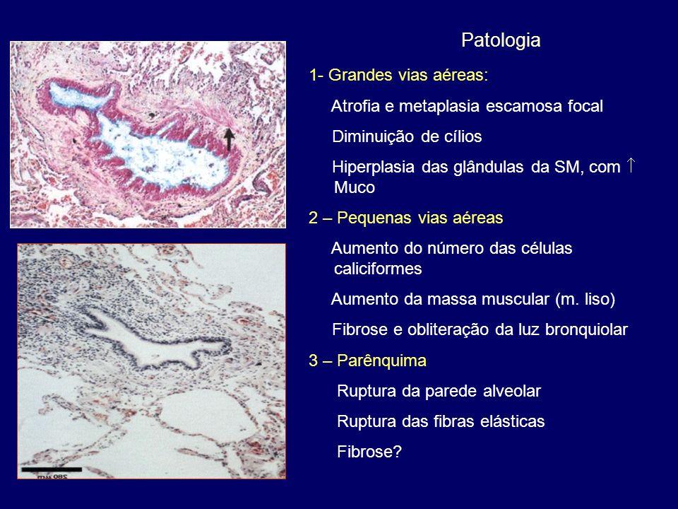 1- Grandes vias aéreas: Atrofia e metaplasia escamosa focal Diminuição de cílios Hiperplasia das glândulas da SM, com Muco 2 – Pequenas vias aéreas Au