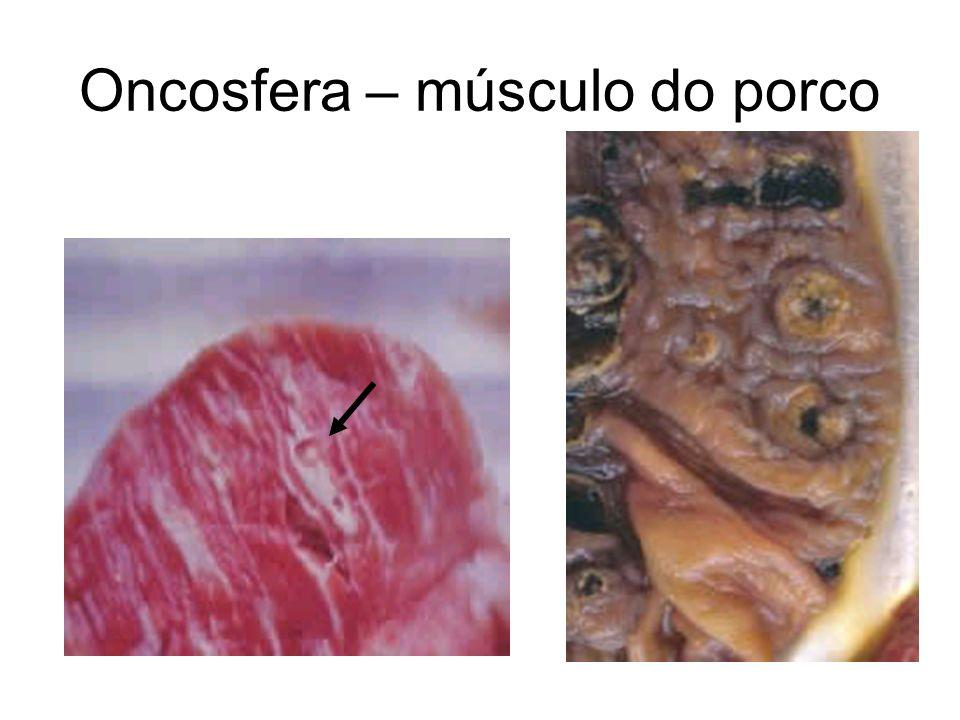 Oncosfera – músculo do porco