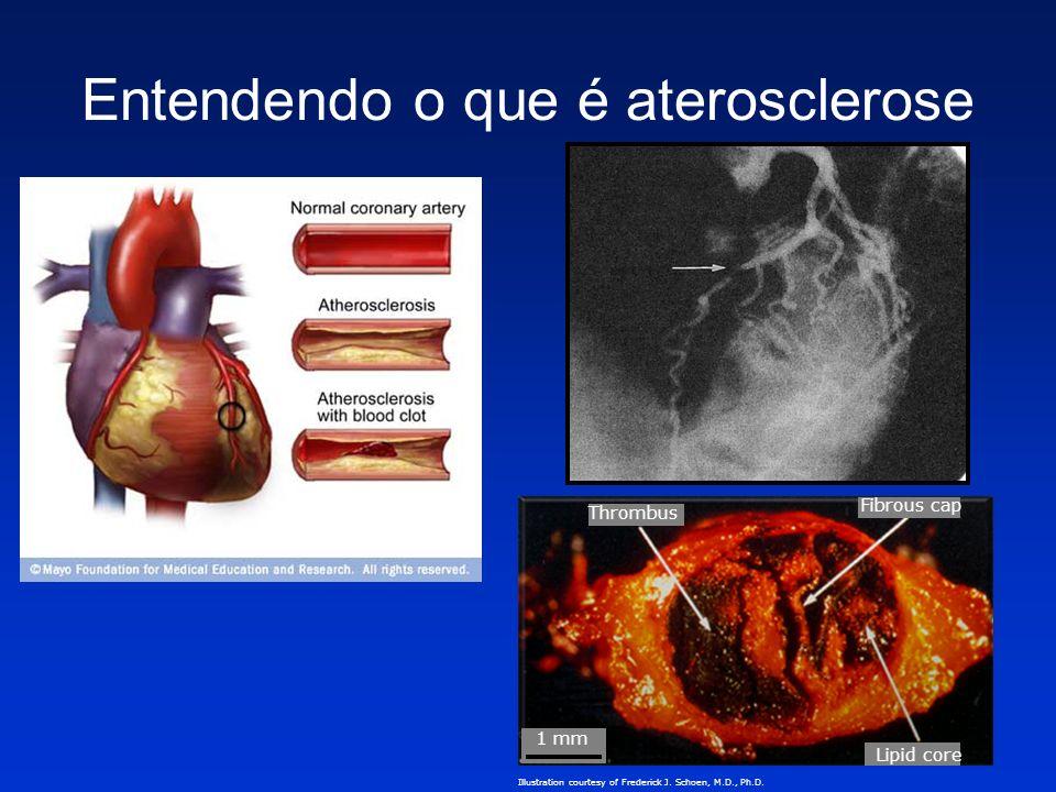 Entendendo o que é aterosclerose Thrombus Fibrous cap 1 mm Lipid core Illustration courtesy of Frederick J. Schoen, M.D., Ph.D.