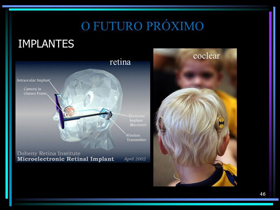 IMPLANTES 46 O FUTURO PRÓXIMO coclear retina