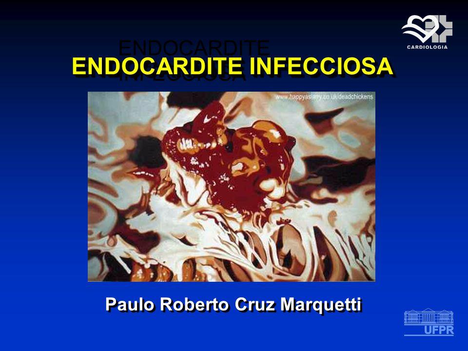 ENDOCARDITE INFECCIOSA Paulo Roberto Cruz Marquetti