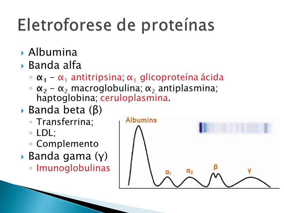 Albumina Banda alfa α 1 - α 1 antitripsina; α 1 glicoproteína ácida α 2 - α 2 macroglobulina; α 2 antiplasmina; haptoglobina; ceruloplasmina. Banda be