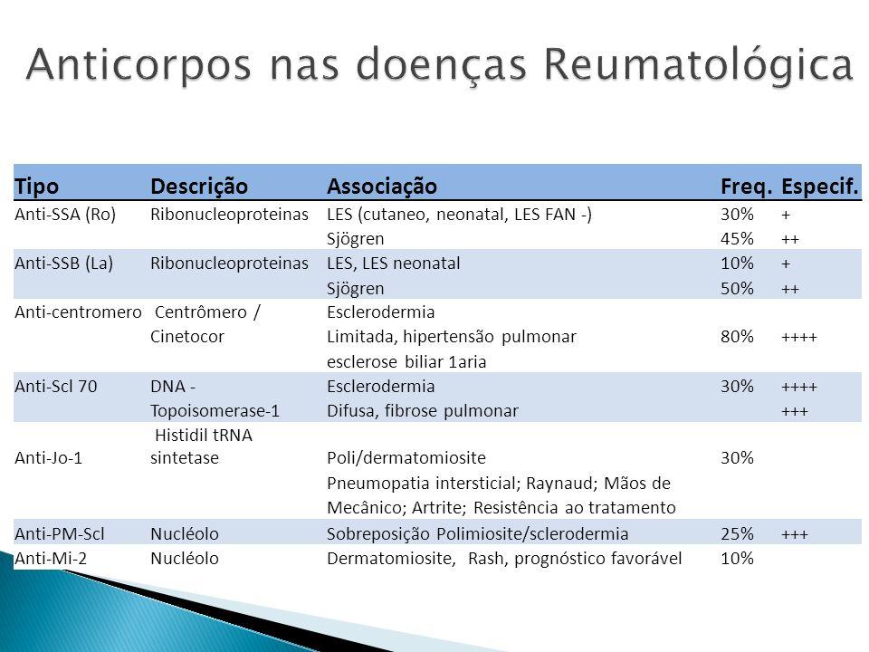 TipoDescriçãoAssociaçãoFreq.Especif. Anti-SSA (Ro)RibonucleoproteinasLES (cutaneo, neonatal, LES FAN -)30%+ Sjögren45%++ Anti-SSB (La)Ribonucleoprotei