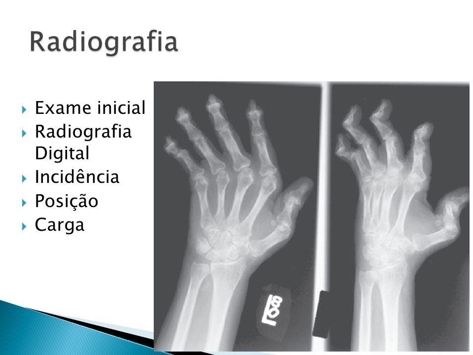 Exame inicial Radiografia Digital Incidência Posição Carga