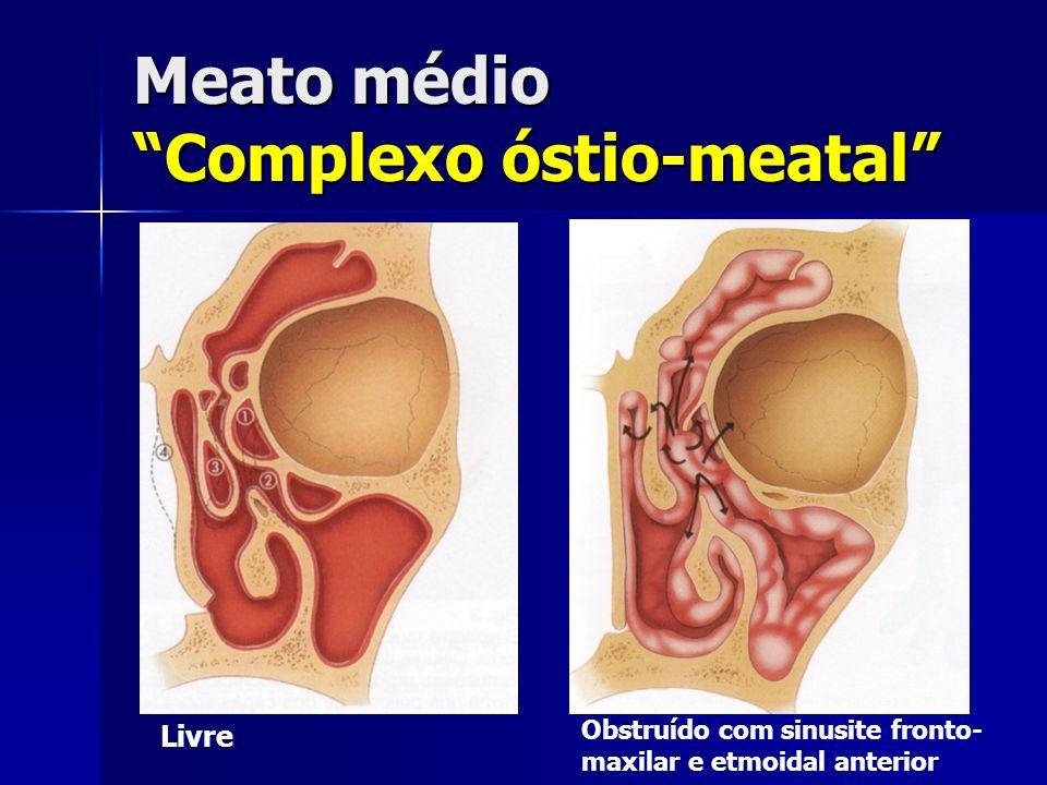 Meato médio Complexo óstio-meatal Livre Obstruído com sinusite fronto- maxilar e etmoidal anterior