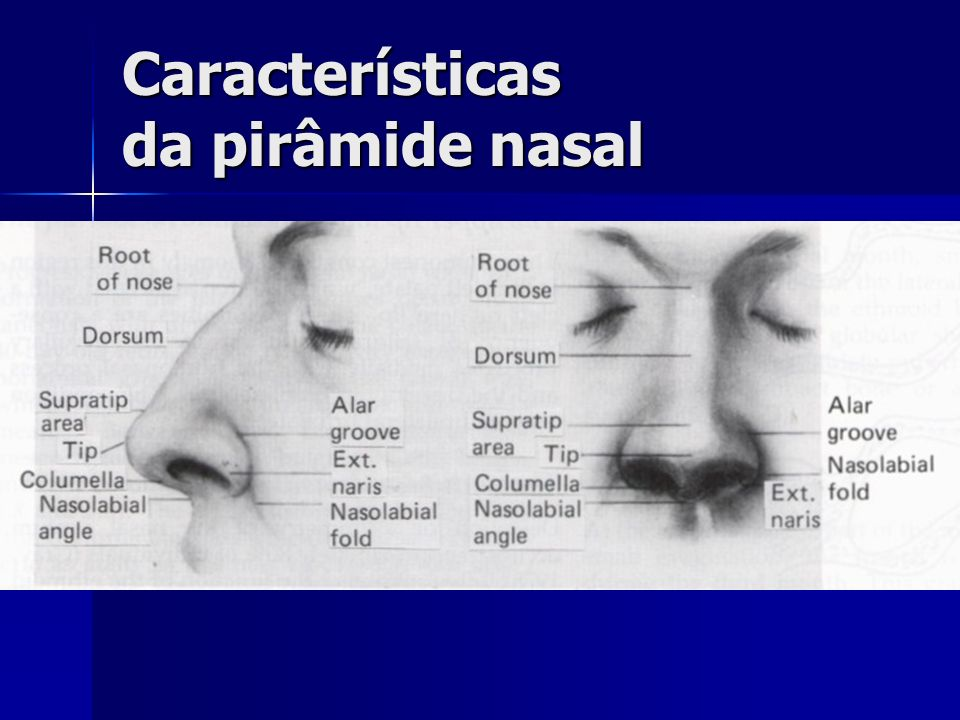 Características da pirâmide nasal
