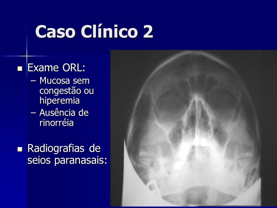 Caso Clínico 2 Exame ORL: Exame ORL: –Mucosa sem congestão ou hiperemia –Ausência de rinorréia Radiografias de seios paranasais: Radiografias de seios