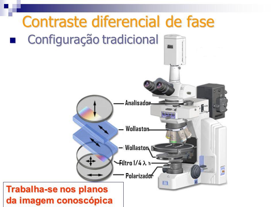 Configuração alternativa (de Senarmont) Configuração alternativa (de Senarmont) Objetiva Analisador Polarizador giratório Filtro ¼ de Amostra Fonte de luz Diafragma do condensador Compensador de Senarmont: Consiste num filtro ¼ de e um polarizador (pode ser o analisador) giratório.