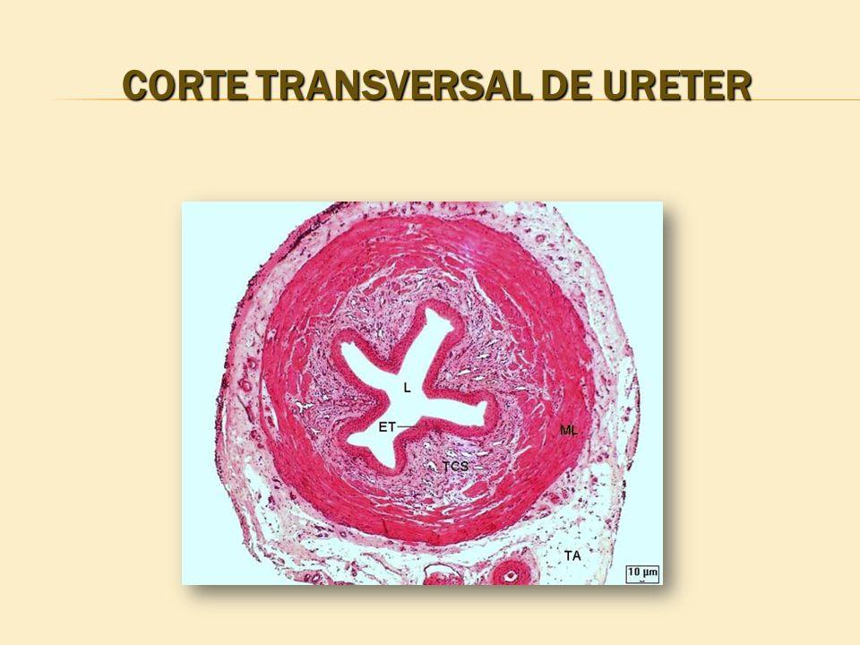 CORTE TRANSVERSAL DE URETER