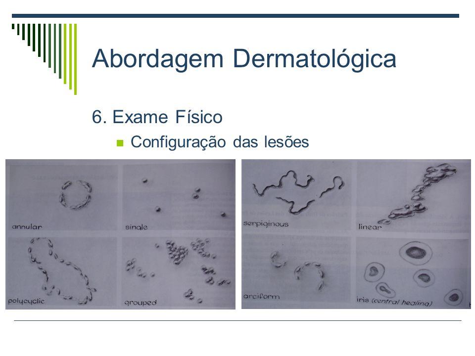 Abordagem Dermatológica 6. Exame Físico Configuração das lesões