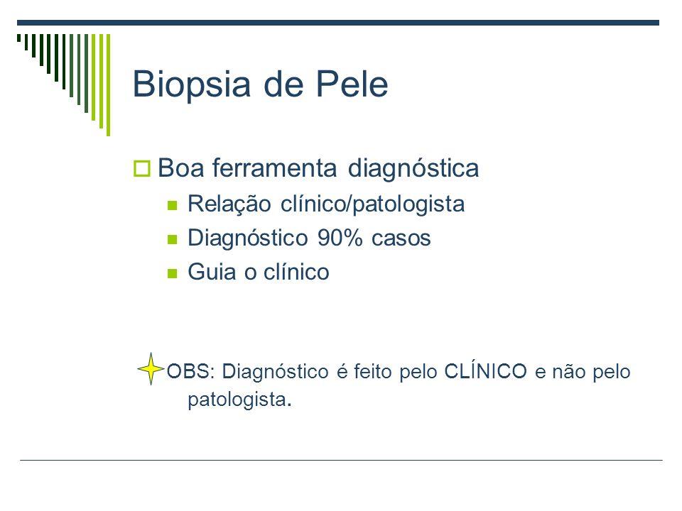Biopsia de Pele Boa ferramenta diagnóstica Relação clínico/patologista Diagnóstico 90% casos Guia o clínico OBS: Diagnóstico é feito pelo CLÍNICO e nã