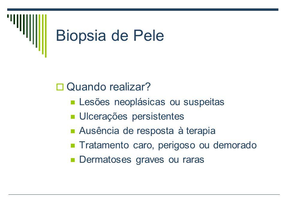 Biopsia de Pele Quando realizar? Lesões neoplásicas ou suspeitas Ulcerações persistentes Ausência de resposta à terapia Tratamento caro, perigoso ou d