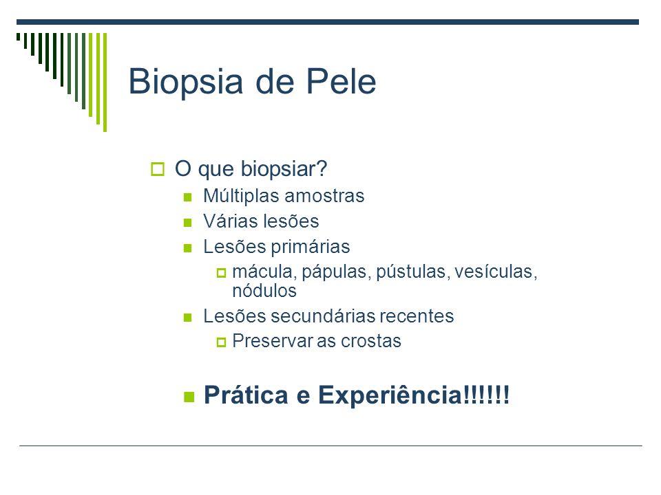 Biopsia de Pele O que biopsiar? Múltiplas amostras Várias lesões Lesões primárias mácula, pápulas, pústulas, vesículas, nódulos Lesões secundárias rec