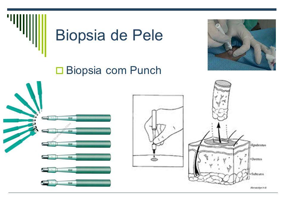 Biopsia de Pele Biopsia com Punch
