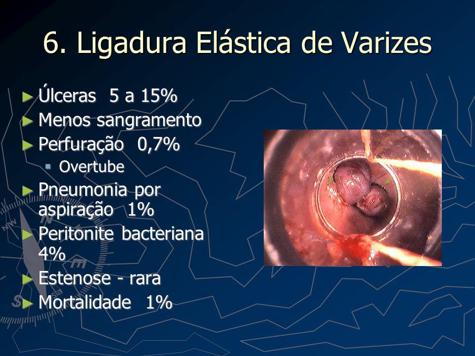 6. Ligadura Elástica de Varizes Úlceras 5 a 15% Úlceras 5 a 15% Menos sangramento Menos sangramento Perfuração 0,7% Perfuração 0,7% Overtube Overtube