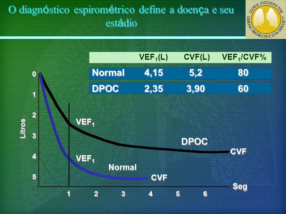 O diagn ó stico espirom é trico define a doen ç a e seu est á dio Litros VEF 1 Normal CVF Seg DPOC 0 0 1 1 2 2 3 3 4 4 5 5 VEF 1 (L) CVF(L) VEF 1 /CVF