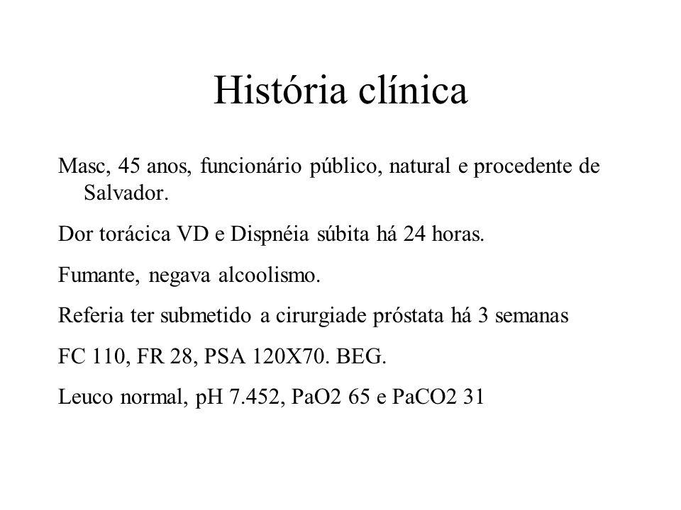 História clínica Masc, 45 anos, funcionário público, natural e procedente de Salvador. Dor torácica VD e Dispnéia súbita há 24 horas. Fumante, negava