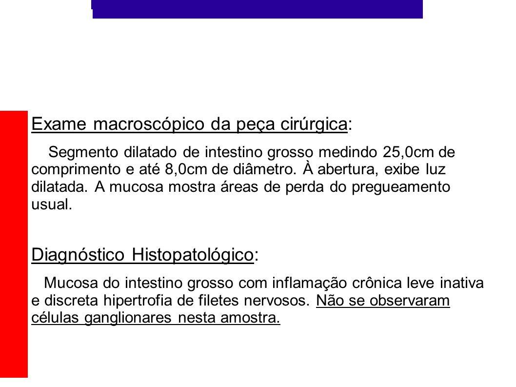 Exame macroscópico da peça cirúrgica: Segmento dilatado de intestino grosso medindo 25,0cm de comprimento e até 8,0cm de diâmetro. À abertura, exibe l