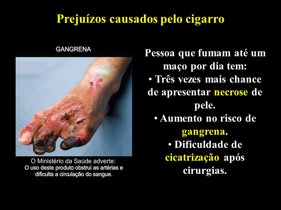 Professor: Deiber Prejuízos causados pelo cigarro Pessoa que fumam até um maço por dia tem: Três vezes mais chance de apresentar necrose de pele. Aume