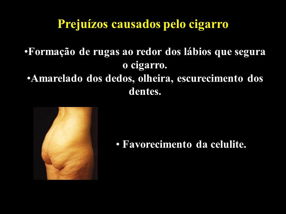 Professor: Deiber Cigarro Álcool DST Prejuízos causados pelo cigarro Formação de rugas ao redor dos lábios que segura o cigarro. Amarelado dos dedos,