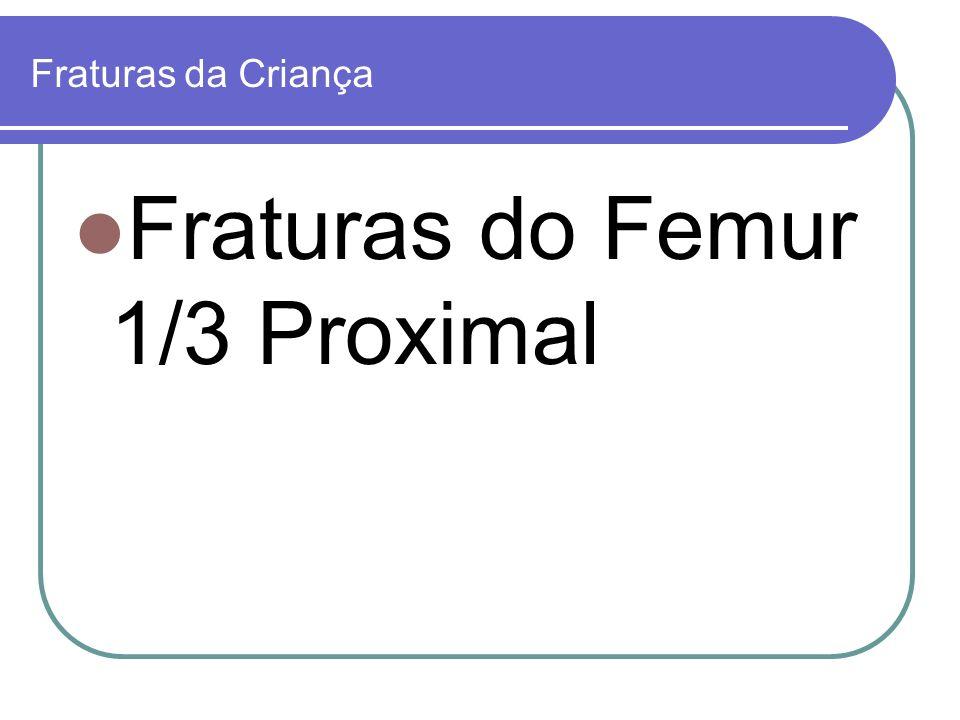 Fraturas da Criança Fraturas do Femur 1/3 Proximal