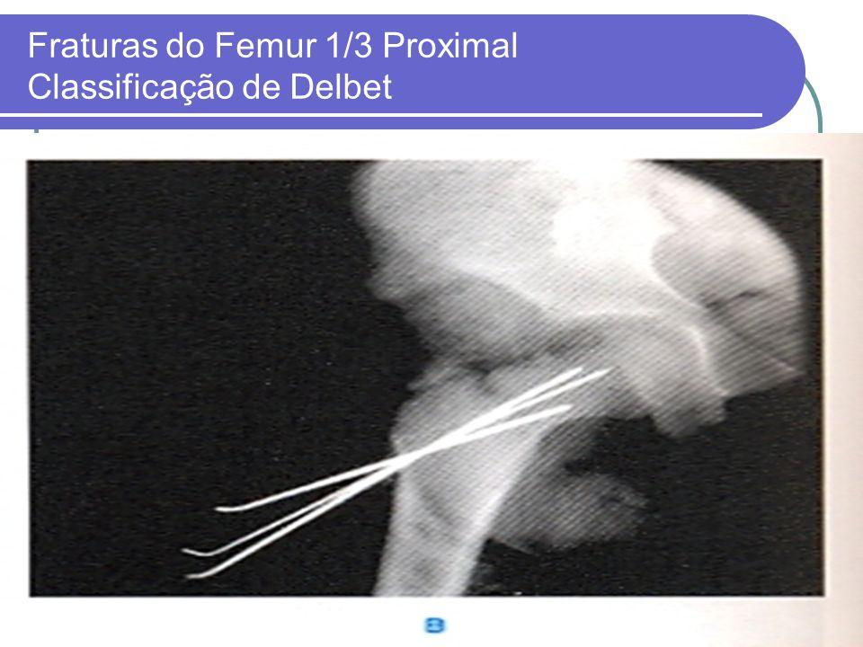 Fraturas do Femur 1/3 Proximal Classificação de Delbet