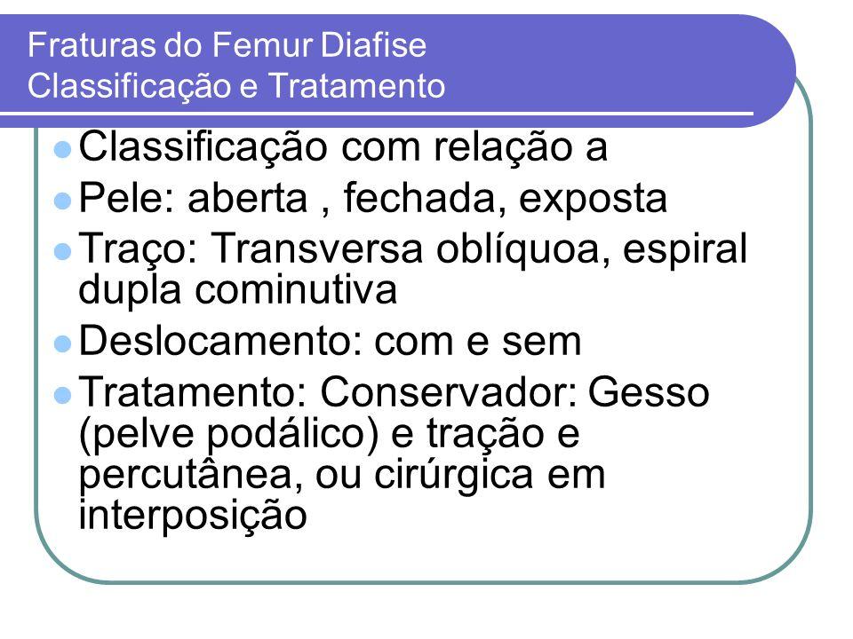 Fraturas do Femur Diafise Classificação e Tratamento Classificação com relação a Pele: aberta, fechada, exposta Traço: Transversa oblíquoa, espiral du