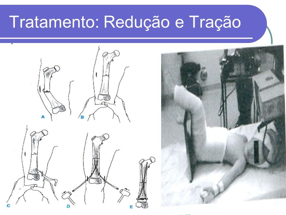 Tratamento: Redução e Tração