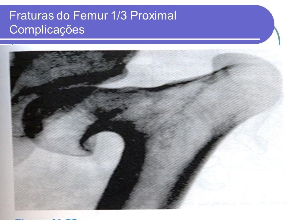 Fraturas do Femur 1/3 Proximal Complicações