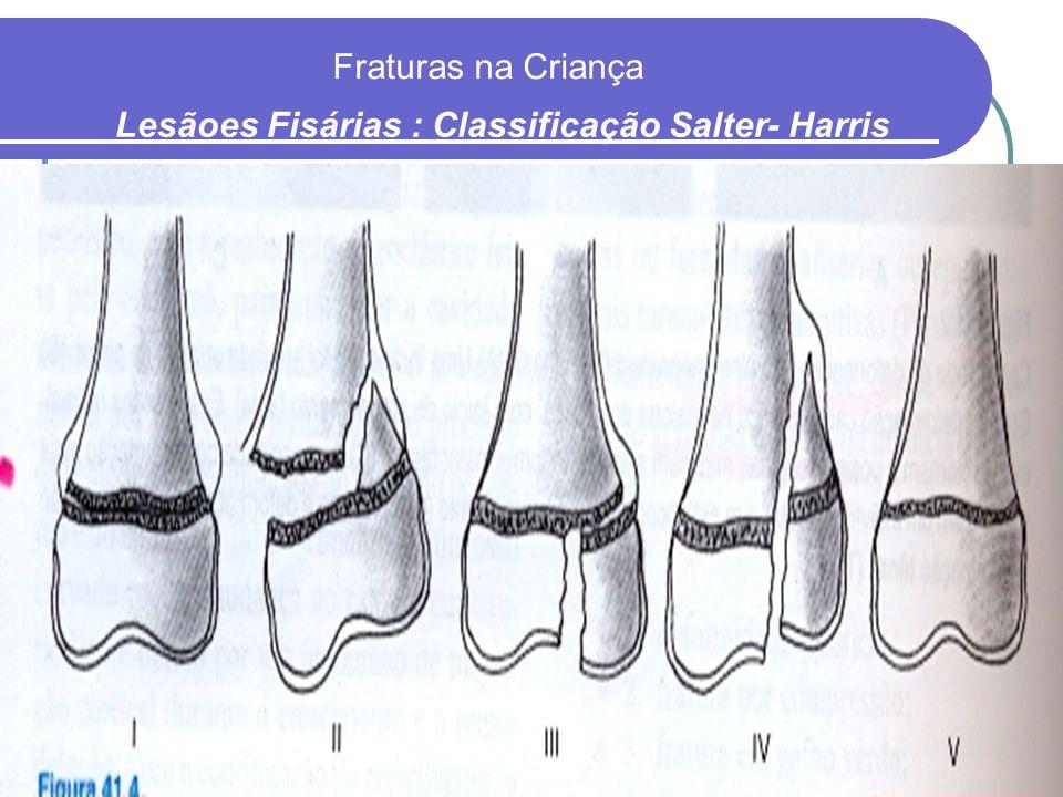 Fraturas na Criança Lesãoes Fisárias : Classificação Salter- Harris