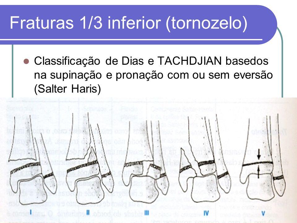 Fraturas 1/3 inferior (tornozelo) Classificação de Dias e TACHDJIAN basedos na supinação e pronação com ou sem eversão (Salter Haris)