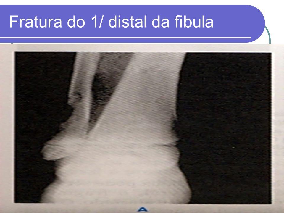 Fratura do 1/ distal da fibula