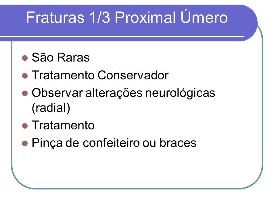 Fraturas 1/3 Proximal Úmero São Raras Tratamento Conservador Observar alterações neurológicas (radial) Tratamento Pinça de confeiteiro ou braces