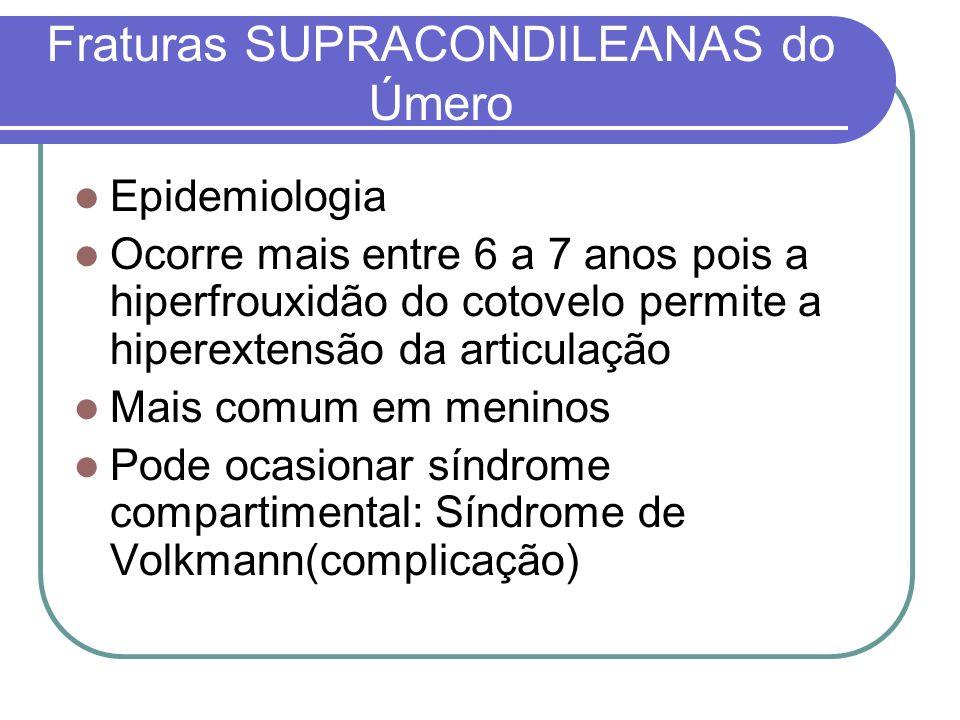 Fraturas SUPRACONDILEANAS do Úmero Epidemiologia Ocorre mais entre 6 a 7 anos pois a hiperfrouxidão do cotovelo permite a hiperextensão da articulação