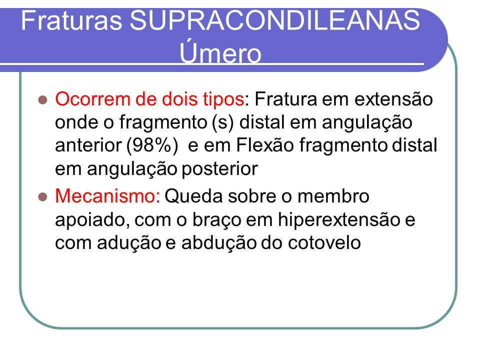 Fraturas SUPRACONDILEANAS Úmero Ocorrem de dois tipos: Fratura em extensão onde o fragmento (s) distal em angulação anterior (98%) e em Flexão fragmen