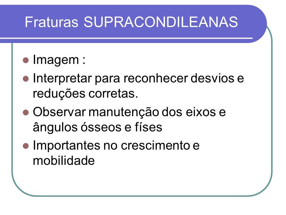 Fraturas SUPRACONDILEANAS Imagem : Interpretar para reconhecer desvios e reduções corretas. Observar manutenção dos eixos e ângulos ósseos e físes Imp
